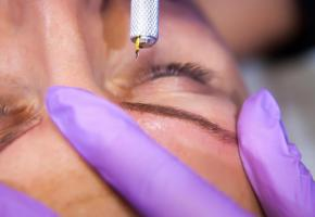 Des pigments sont implantés dans le derme. GETTY IMAGES/STOCKPHOTOGRAPHERS